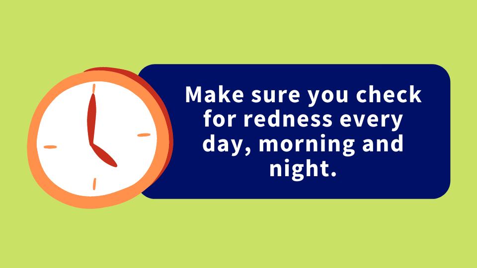 """An illustration of a clock is positioned next to the text, 'Make sure you check for redness every day, morning and night."""""""